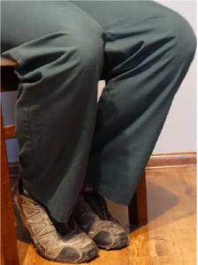 Nieprawidłowe ułożenie nóg