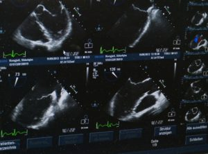 USG w fizjoterapii