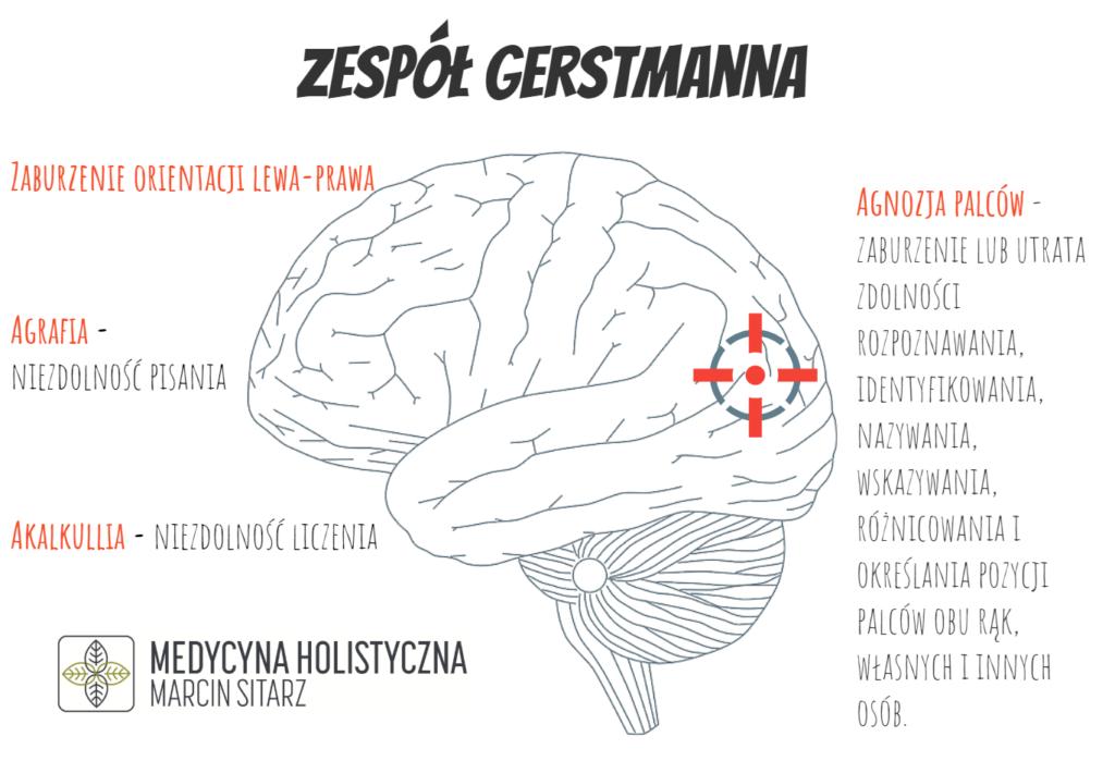 Zespół  gerstmanna objawy lokalizacja